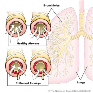 relationship between respiratory syncytial virus and bronchiolitis
